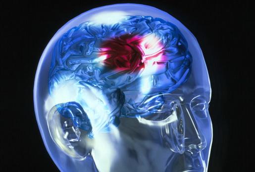 Ученые выяснили, когда чаще всего происходят инсульты