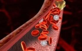 Фрукт, который предотвратит появление тромбов