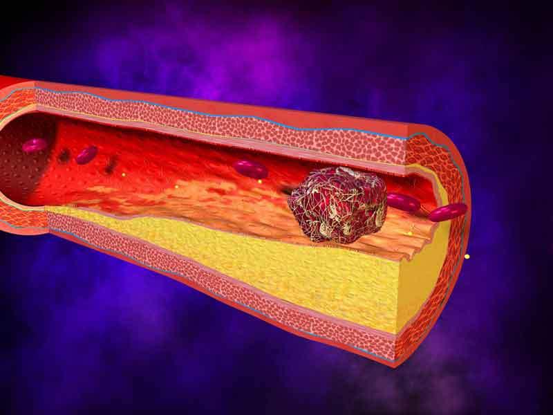 Восемь советов, которые спасут от тромбоза