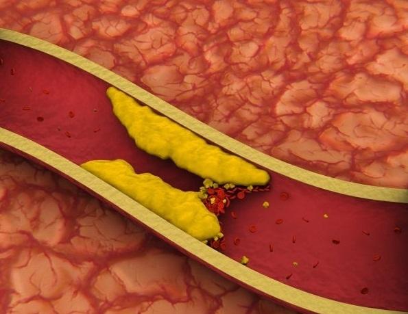 Повышенный уровень холестерина не указывает на риск инсульта?