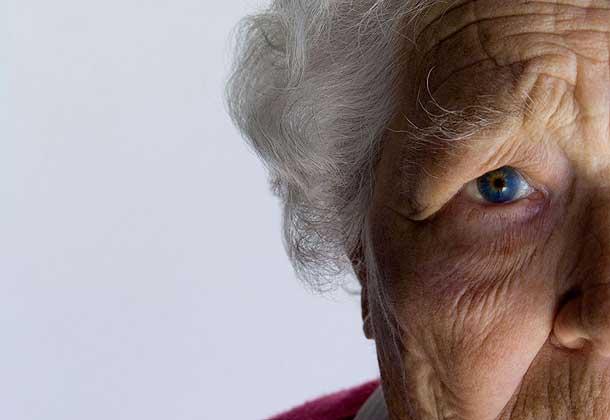 Длительный прием варфарина больными, страдающими мерцательной аритмией, связан с риском развития деменции