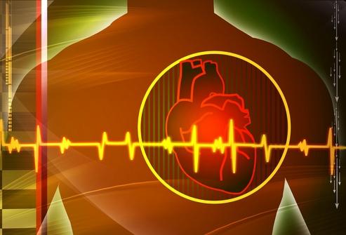 Наличие обструктивного апноэ сна у пациентов с имплантируемыми электрокардиостимуляторами может повышать риск развития мерцательной аритмии