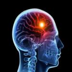 Проблемы с памятью могут привести к инсульту