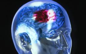 Инсульт и травмы черепа будут лечить диетой