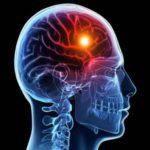 Ученые нашли вещество, которое поможет избежать гибели клеток после инсульта и инфаркта