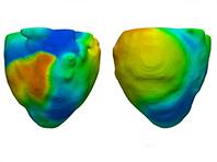 Виртуальная модель сердца поможет вылечить сердечную недостаточность
