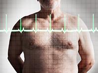 Высокий холестерин не приводит к преждевременной смерти