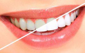 Отбеливание зубов – что надо знать