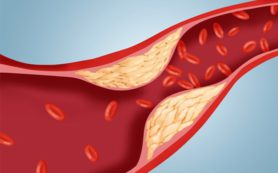 Постная диета: лучшая защита от атеросклероза