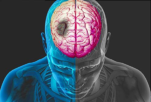 Ученые: когнитивные нарушения повышают риск инсульта