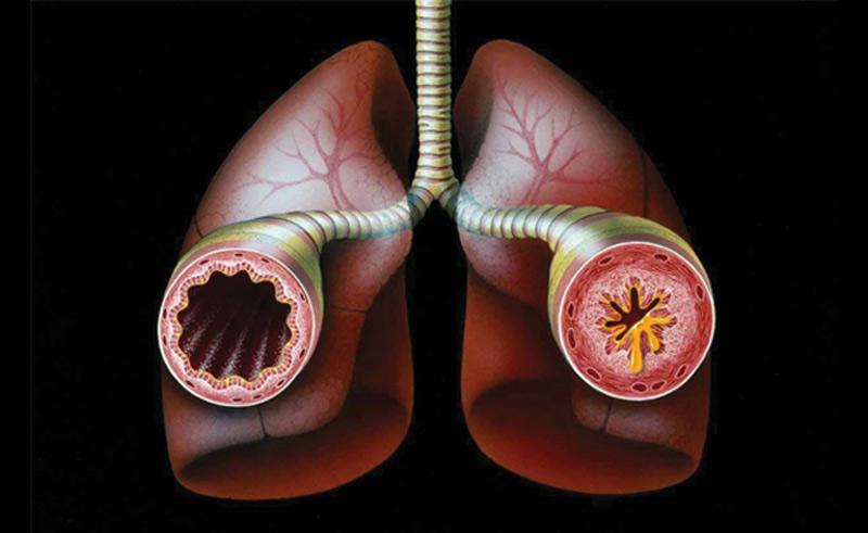 Астматики подвержены повышенному риску сердечного приступа