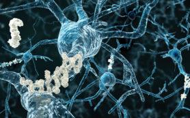 У низкорослых людей чаще развивается болезнь Альцгеймера