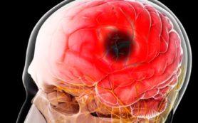 Признаки, помогающие распознать инсульт