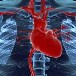 Врожденные пороки сердца – независимый фактор отдаленного риска развития диабета 2-го типа