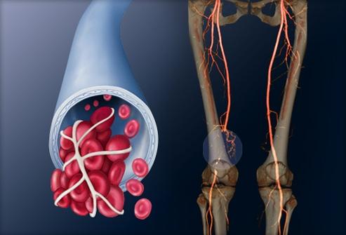 Симптомы тромбоза глубоких вен