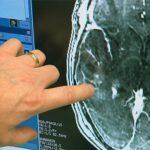 Ультразвуковая стимуляция головного мозга вывела пациента из комы