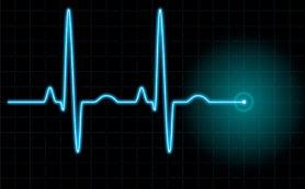 Что приводит к остановке сердца?