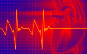 Тахикардия: серьезное нарушение работы сердца