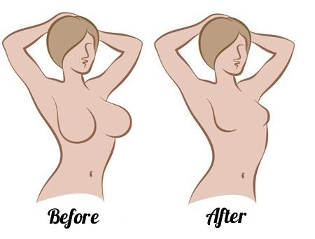 Восстановление после маммопластики.