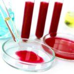 Анализ крови поможет определить слабоумие