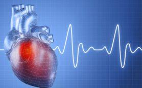 Аритмия после шунтирования коронарной артерии повышает риск смерти