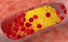 Черный шоколад снижает риск развития атеросклероза