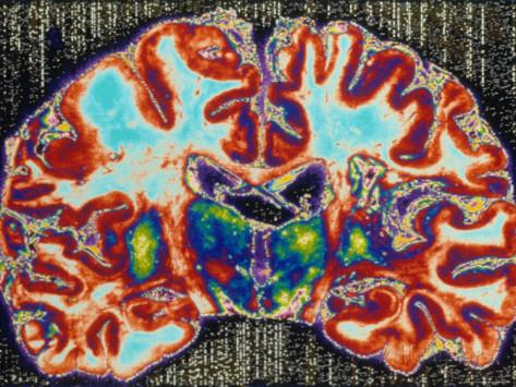 Ученым удалось вырастить искусственный мозг из кожи