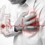 Женщины чаще умирают от инфарктов