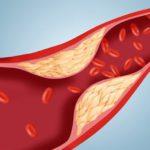 Мужчины болеют атеросклерозом почти в 2 раза чаще женщин