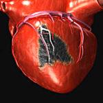 Почему инфаркты чаще случаются по утрам?