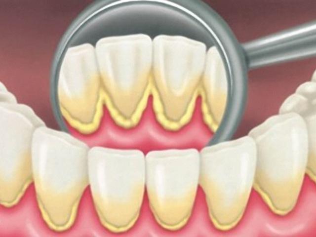 Зубной налет угрожает здоровью сердца