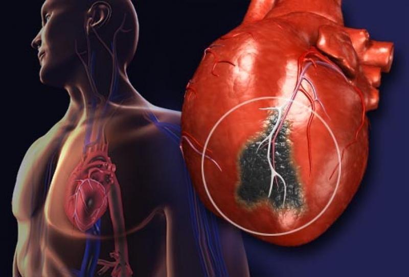 Клубника и голубика полезны в профилактики инфарктов у женщин