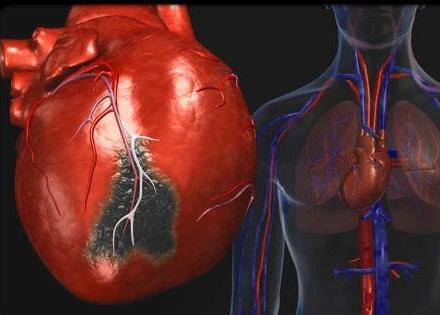 Облысение связано с высоким риском развития ишемической болезни сердца