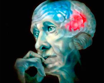 Белки, связанные с болезнью Альцгеймера, вызывают потерю зрения