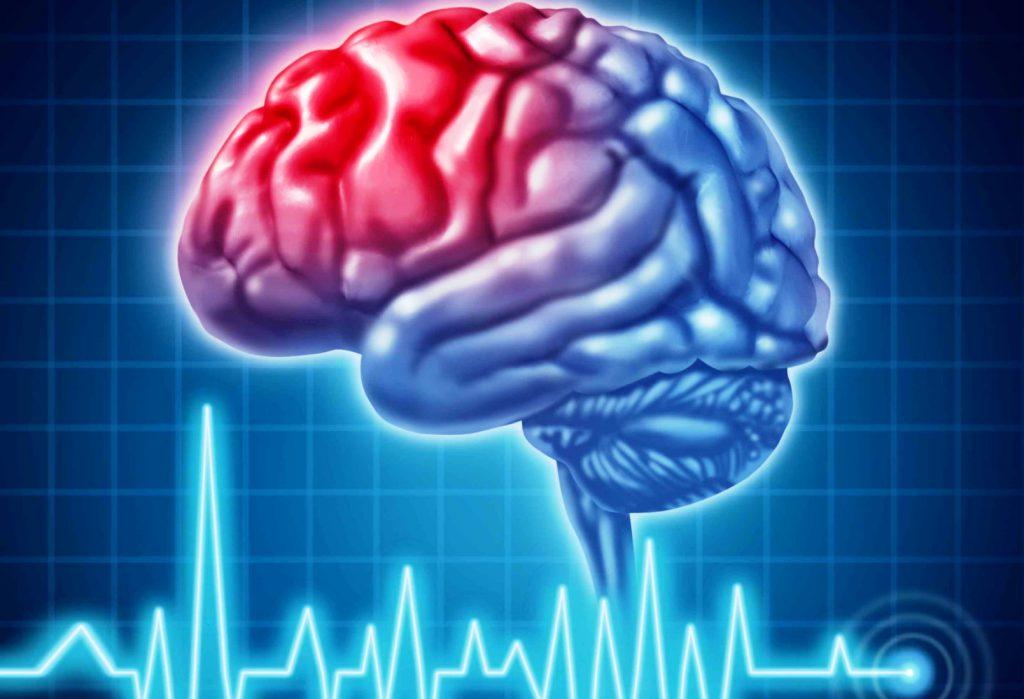 Ранняя диагностика инсульта возможна по состоянию сетчатки глаз