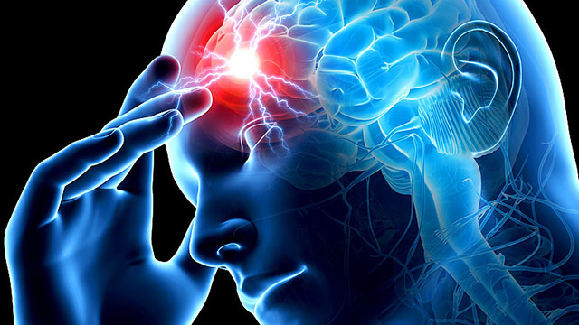 Ишемический инсульт: что это и как его лечить