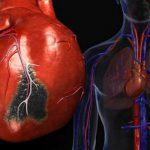 Пессимисты в 2,2 раза чаще умирают от ишемии