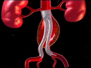 Фрукты защитят от развития и разрыва аневризмы брюшной аорты