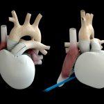 Из-за смерти пациента приостановлены испытания кардиопротеза Carmat