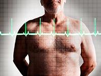 Снижение холестерина до минимума гарантирует защиту от проблем с сердцем и сосудами