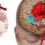 Ген инсульта: найти и обезвредить