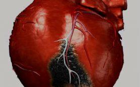 Диабет и инфаркт неразлучны