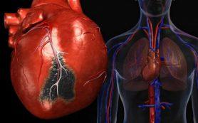Имплантируемое устройство предупредит об инфаркте миокарда