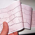 Уникальный министимулятор перевернул современную кардиологию