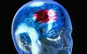 Ученые установили неожиданную причину инсульта