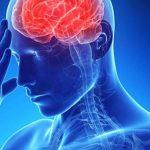 Работа повышает риск возникновения инсульта