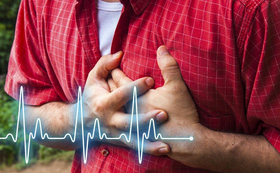 Несколько неожиданных факторов риска по сердечному приступу