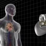 Carmat отозвала запрос на возобновление КИ кардиопротеза