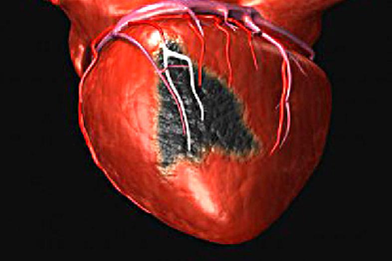 Негативные мысли о старости повышают риск инфарктов и инсультов