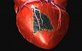 Причины инфаркта: секс и мыло